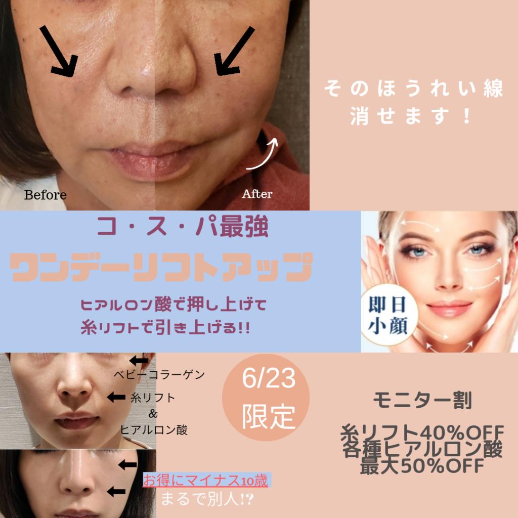【6月23日限定】人気女性美容外科医による めざせ-10歳?!特別イベント